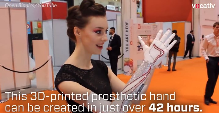 See The First 3D PRINTED PROSTHETIC HAND Open Bionics